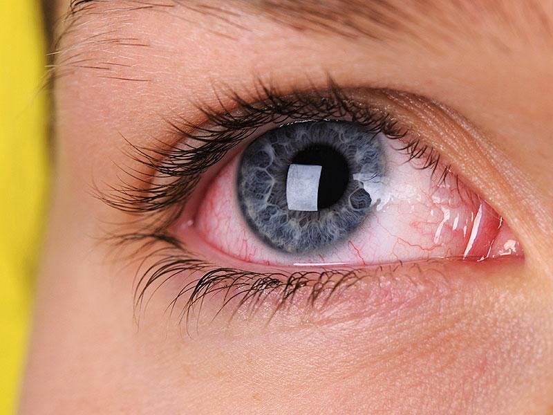 Аллергические реакции на глазах